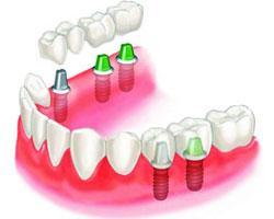 Виды и особенности протезирования зубов
