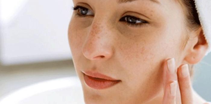 Пигментация у беременных или при других нарушениях в работе организма