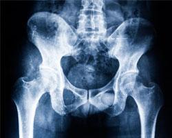 Артроз тазобедренного сустава и его лечение методом эндопротезирования