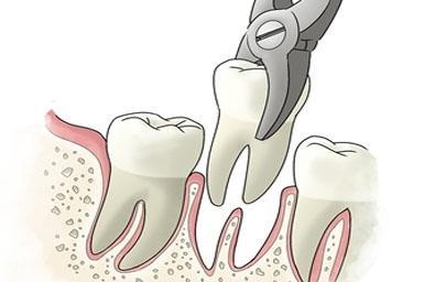 Как ускорить заживление ран после удаления зубов?