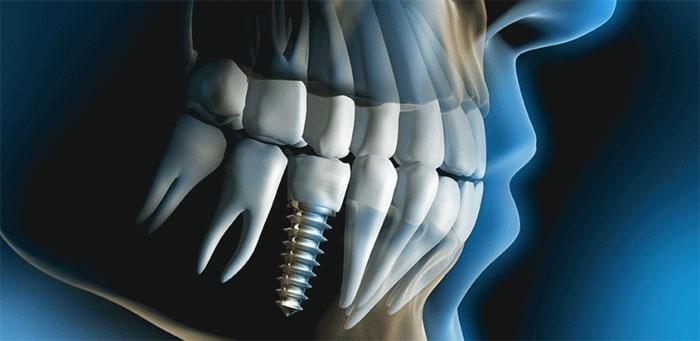 Установить имплант или поставить коронку на протез?